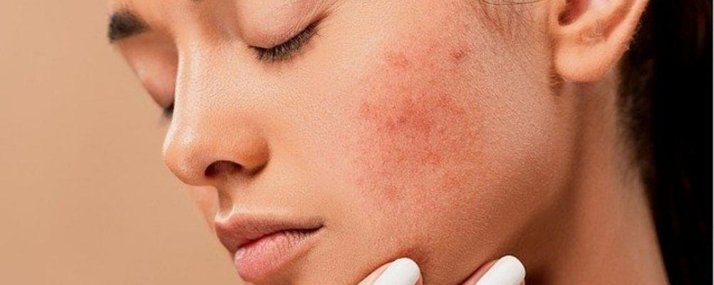 How to prevent acne from whey protein